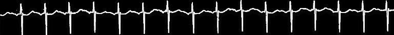 Remi EKG PNG